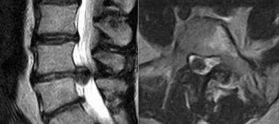 TC e/o RM diagnosticano le immagini di più ernie