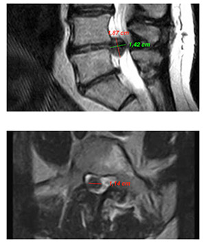 Risonanza Magnetica – Laminectomia trattamento recidiva 12 10 2016
