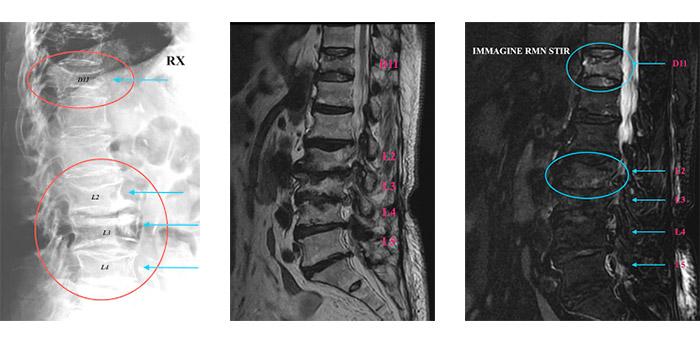 RX – RMN – RMN Sequenza Stir Caso Clinico 01015