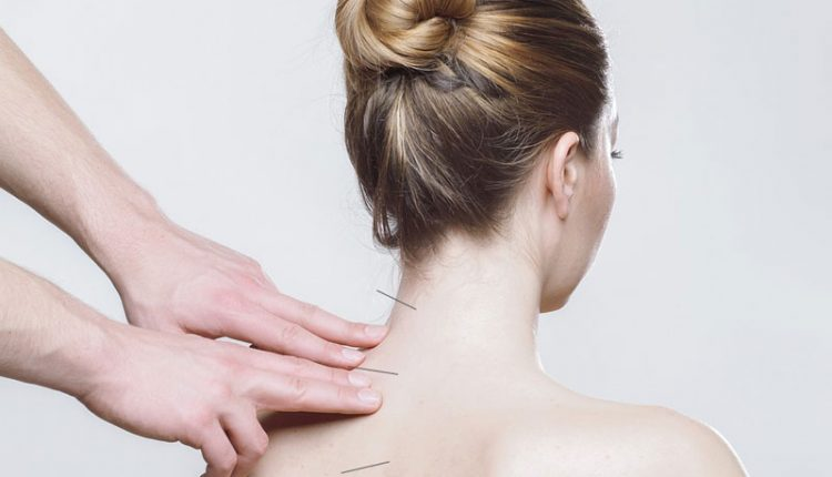 Agopuntura-per-il-Mal-di-Schiena