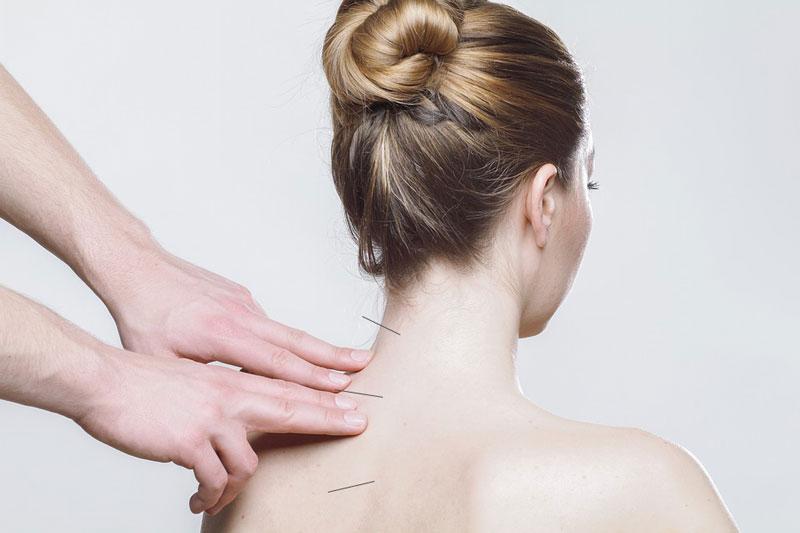 Agopuntura per il Mal di Schiena - Dr. Emanuele Sbacchi..