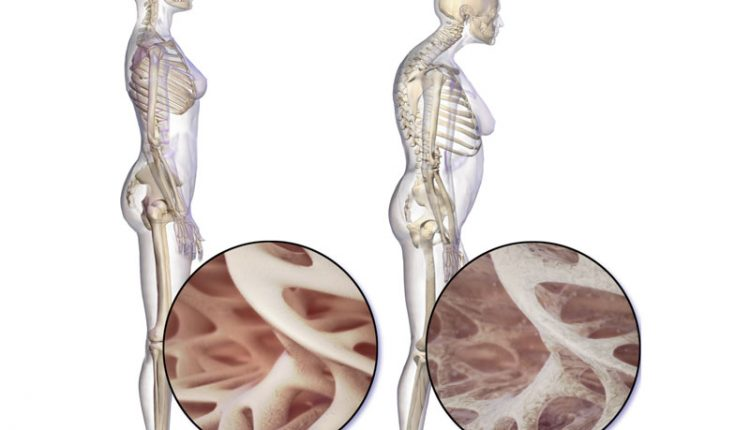 Osteoporosi-e-Colonna-Vertebrale