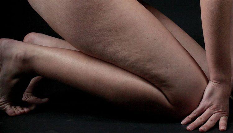 Ozonoterapia-Cellulite